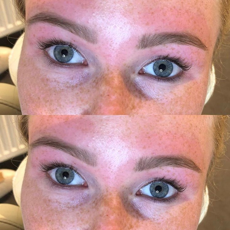 Brow-treatment